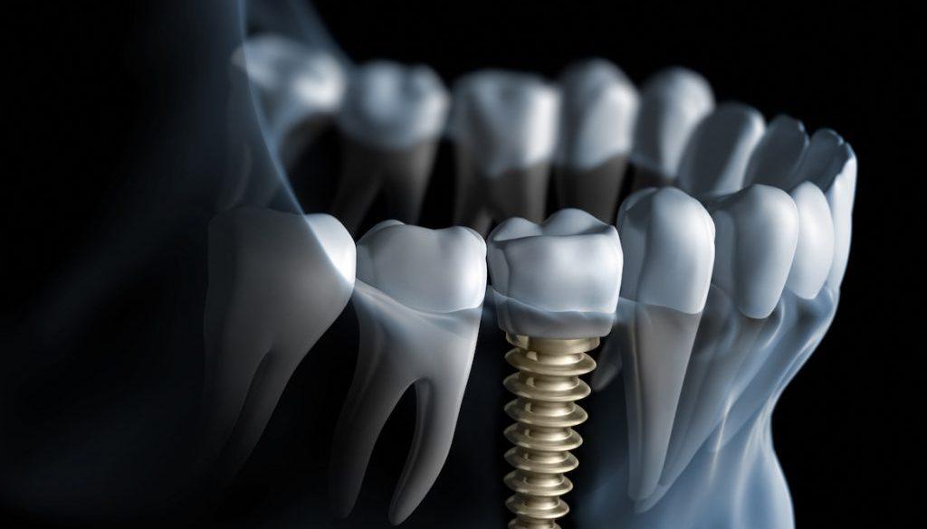 Zęby trzecie, czyli kilka słów o implantach.