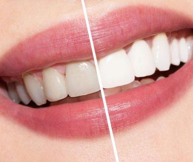 Bielsze zęby jak diamenty!