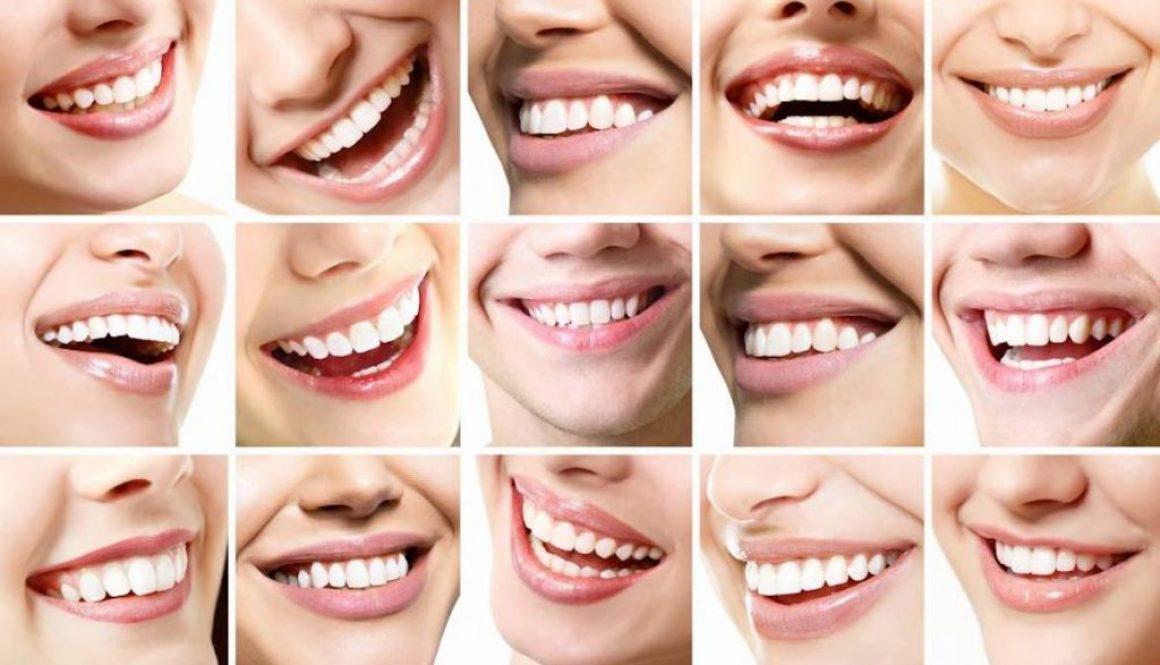 Co kształt zębów mówi o Twoim charakterze?