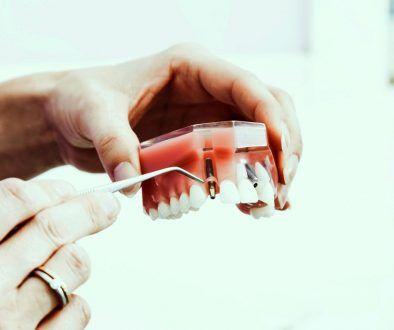 Ząb zastępczy wstąp, czyli wstęp do wiedzy o implantach